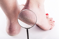 Infections and Cracked Heels