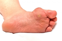 Overview of Plantar Warts