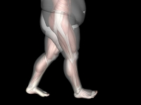 Can Foot Pain Be Related to Obesity?