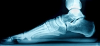 What Are the Signs of Flat Feet?