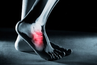 Where Your Foot Pain May Be Coming From