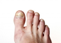 How Does Toenail Fungus Enter The Body?