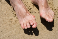 The Importance of Promptly Treating Hammertoe